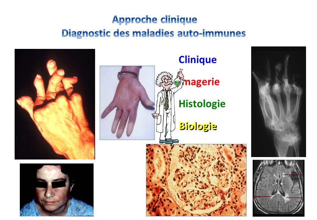 Diagnostic des maladies auto-immunes
