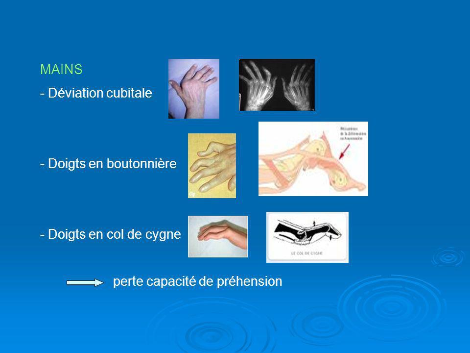 MAINS Déviation cubitale Doigts en boutonnière Doigts en col de cygne perte capacité de préhension
