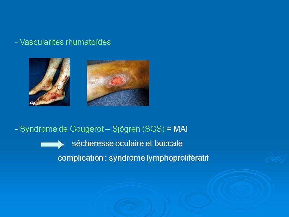 - Vascularites rhumatoïdes