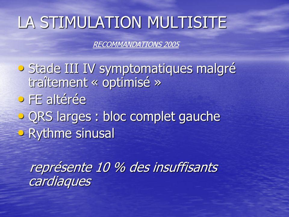 LA STIMULATION MULTISITE RECOMMANDATIONS 2005
