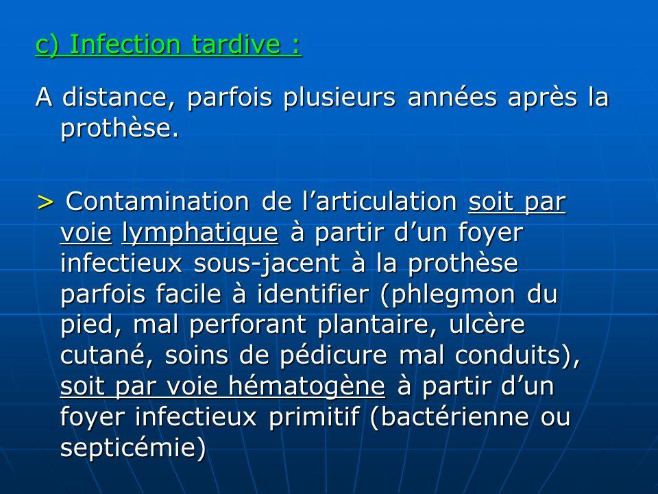 c) Infection tardive : A distance, parfois plusieurs années après la prothèse.