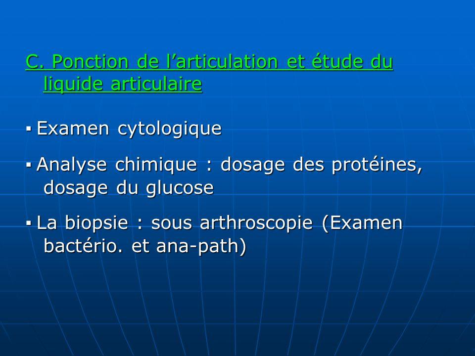 C. Ponction de l'articulation et étude du liquide articulaire