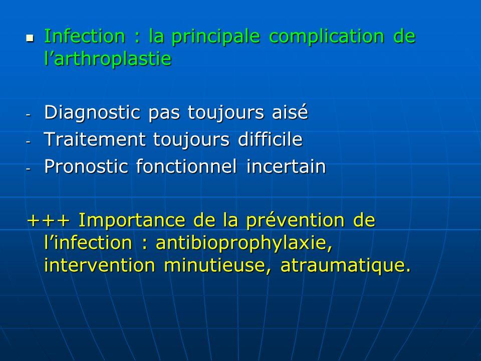 Infection : la principale complication de l'arthroplastie