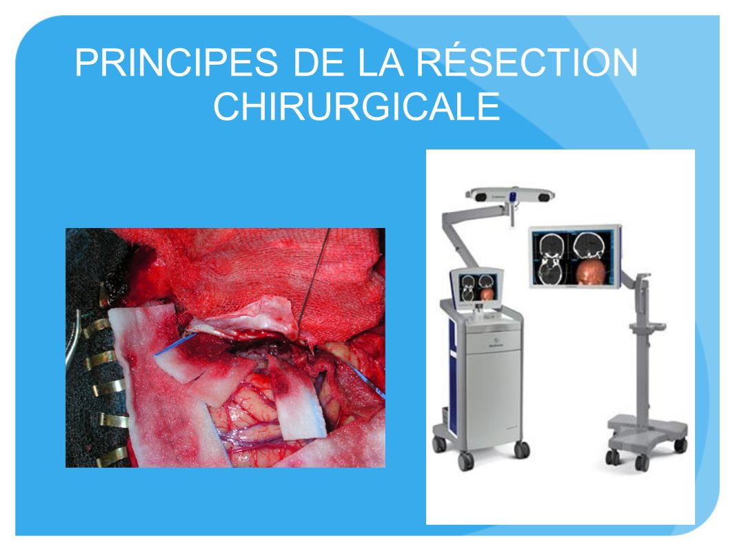PRINCIPES DE LA RÉSECTION CHIRURGICALE