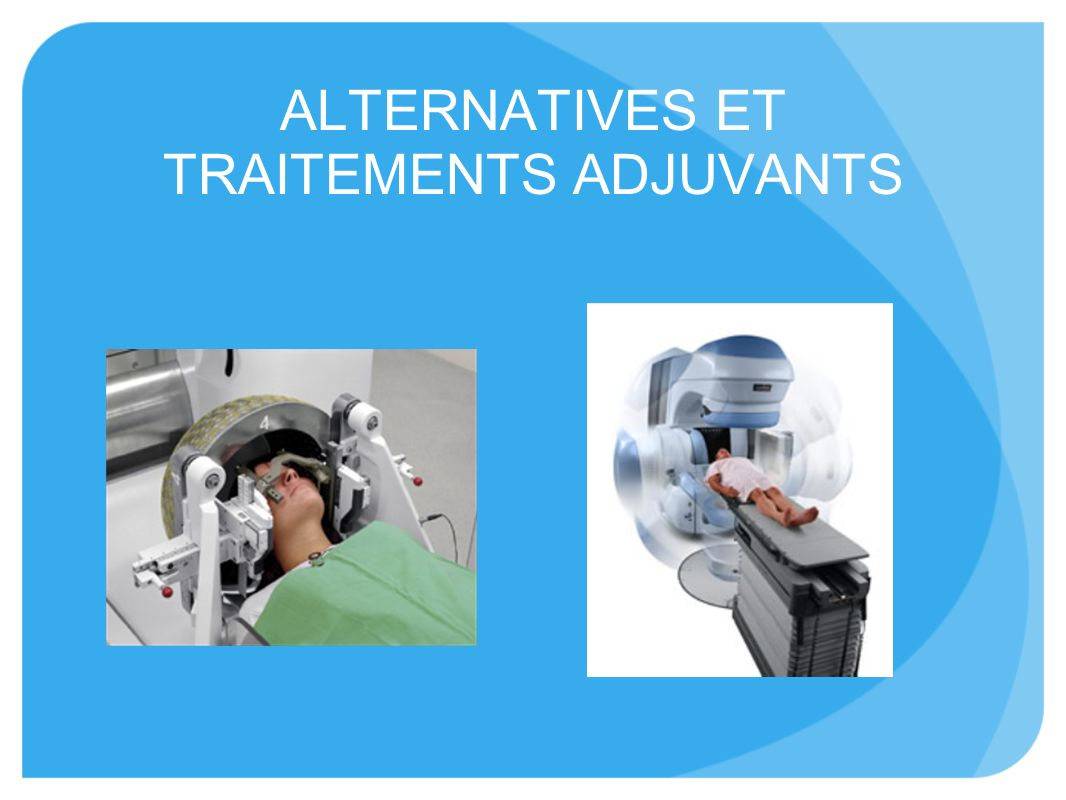 ALTERNATIVES ET TRAITEMENTS ADJUVANTS