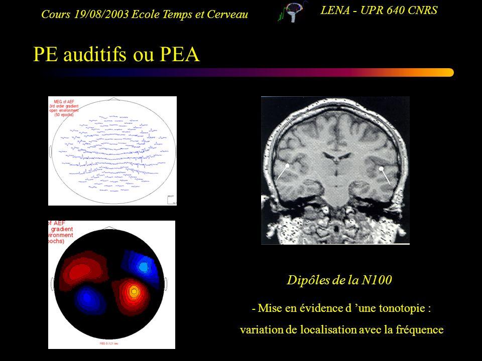 PE auditifs ou PEA Dipôles de la N100 LENA - UPR 640 CNRS