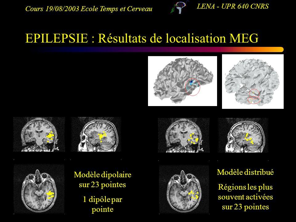 EPILEPSIE : Résultats de localisation MEG