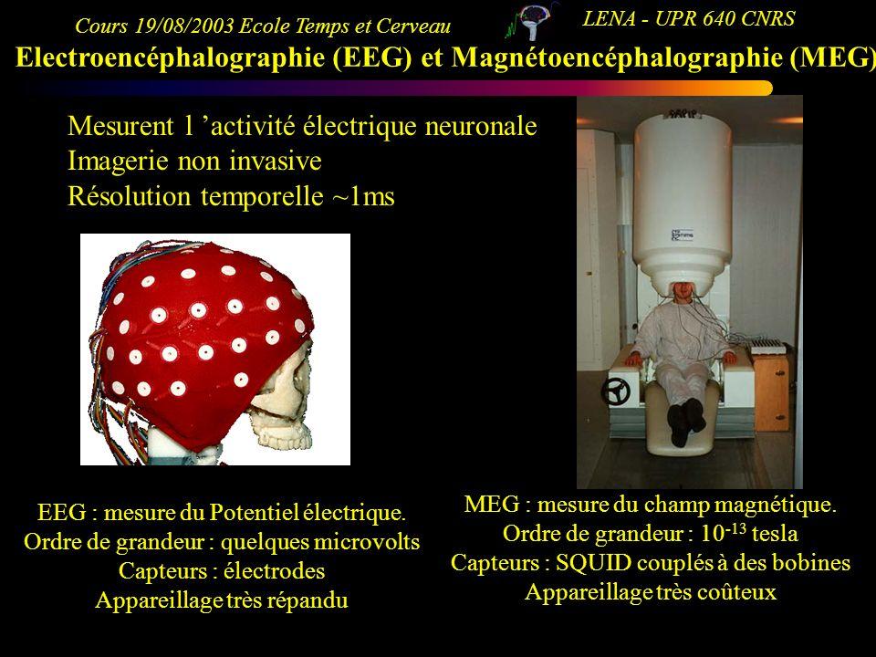 Electroencéphalographie (EEG) et Magnétoencéphalographie (MEG)