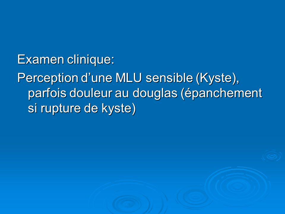 Examen clinique: Perception d'une MLU sensible (Kyste), parfois douleur au douglas (épanchement si rupture de kyste)