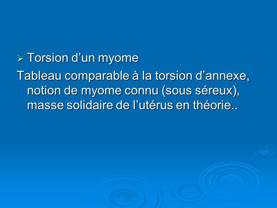 Torsion d'un myome Tableau comparable à la torsion d'annexe, notion de myome connu (sous séreux), masse solidaire de l'utérus en théorie..