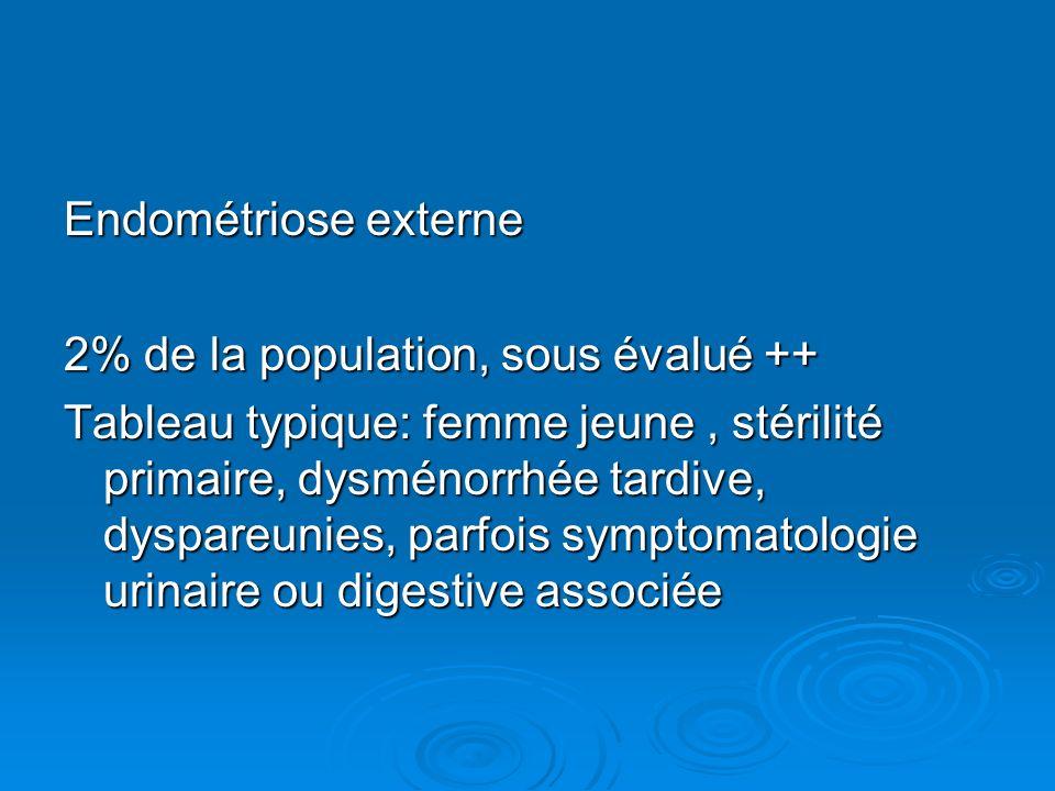 Endométriose externe 2% de la population, sous évalué ++