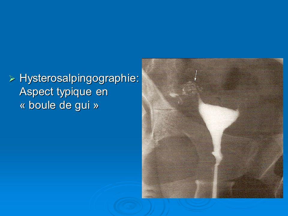 Hysterosalpingographie:Aspect typique en « boule de gui »