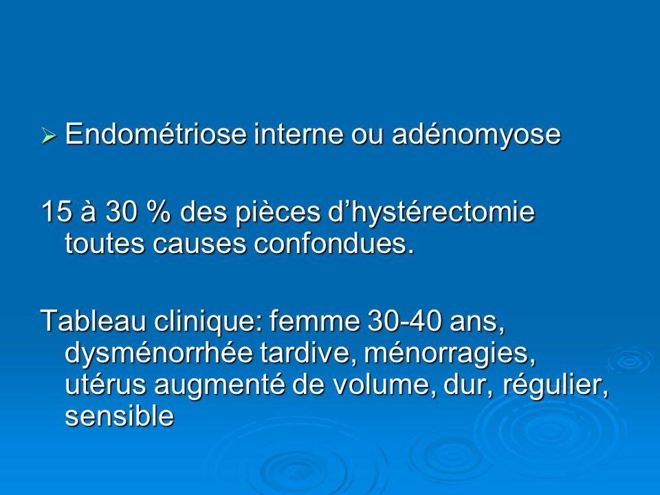 Endométriose interne ou adénomyose