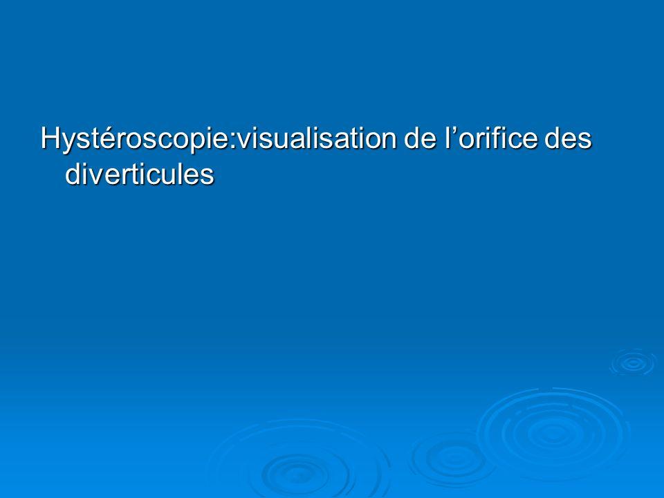 Hystéroscopie:visualisation de l'orifice des diverticules