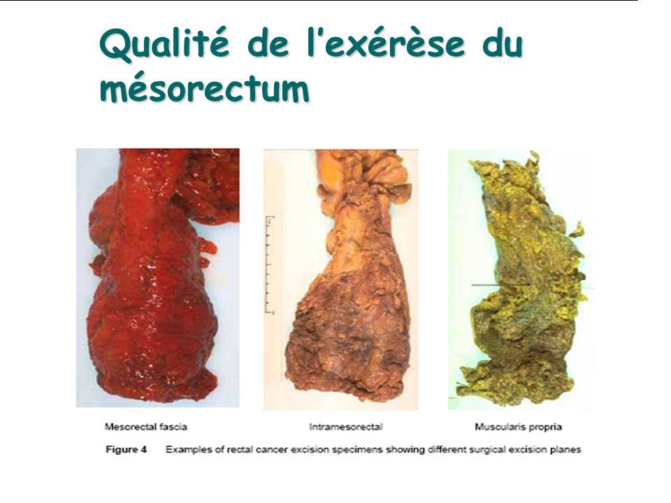 Qualité de l'exérèse du mésorectum