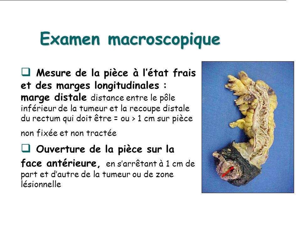 Examen macroscopique