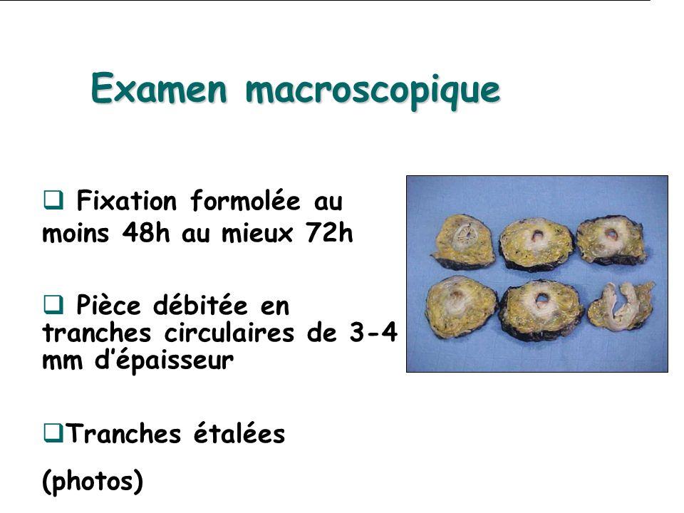 Examen macroscopique Fixation formolée au moins 48h au mieux 72h