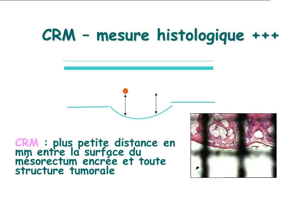 CRM – mesure histologique +++