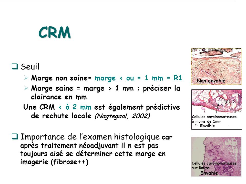 CRM Seuil. Marge non saine= marge < ou = 1 mm = R1. Marge saine = marge > 1 mm : préciser la clairance en mm.
