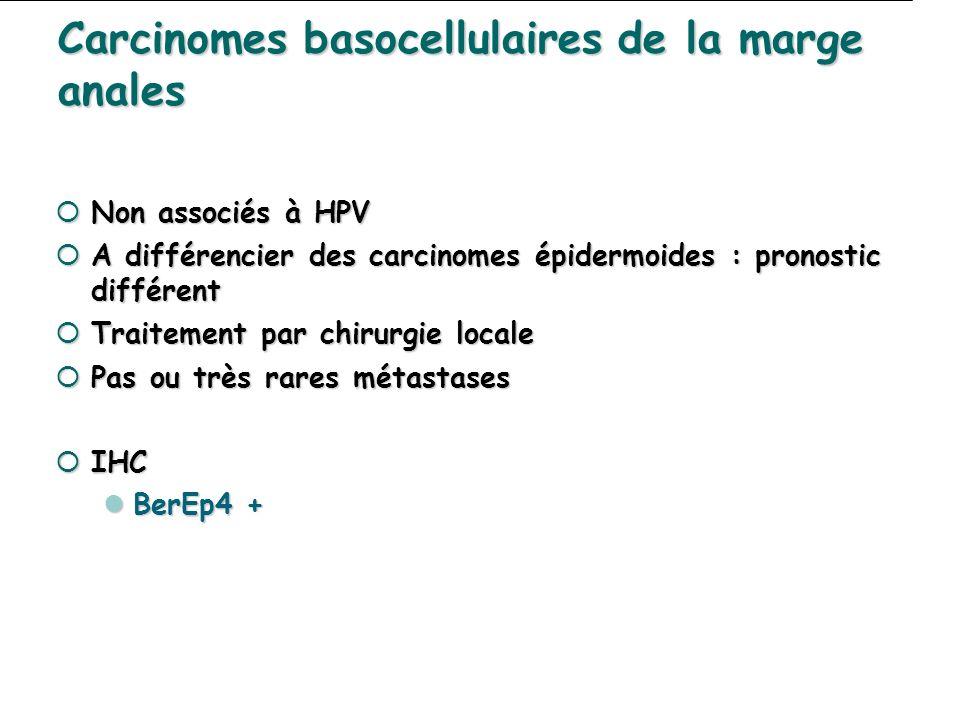 Carcinomes basocellulaires de la marge anales