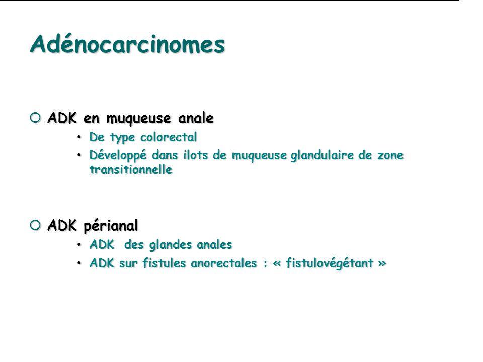 Adénocarcinomes ADK en muqueuse anale ADK périanal De type colorectal