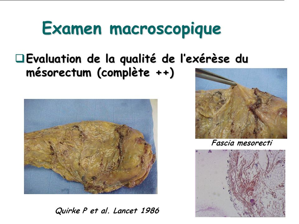 Examen macroscopique Evaluation de la qualité de l'exérèse du mésorectum (complète ++) Fascia mesorecti.