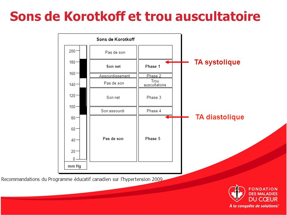 Sons de Korotkoff et trou auscultatoire