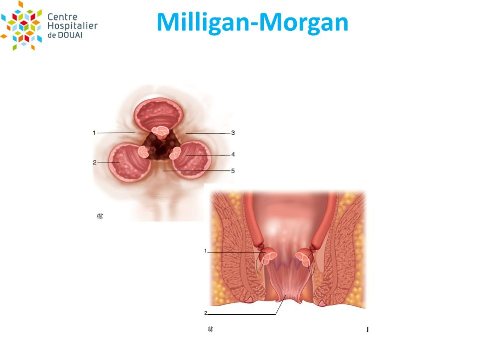 Milligan-Morgan