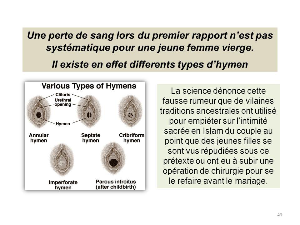 Il existe en effet differents types d'hymen