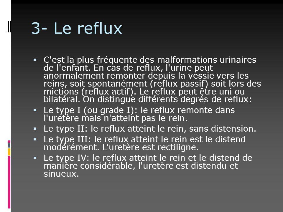 3- Le reflux