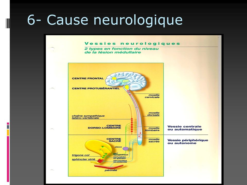 6- Cause neurologique