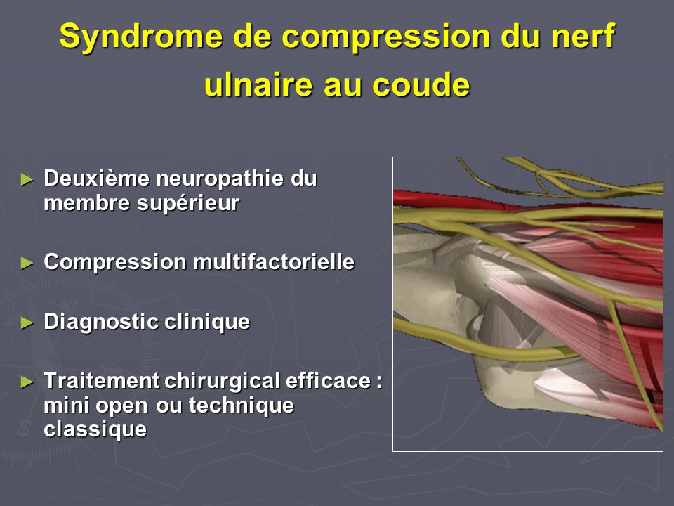 Syndrome de compression du nerf ulnaire au coude