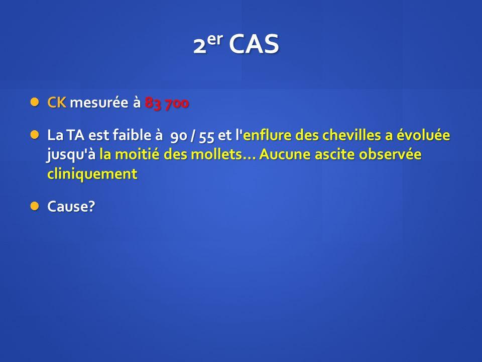 2er CAS CK mesurée à 83 700.