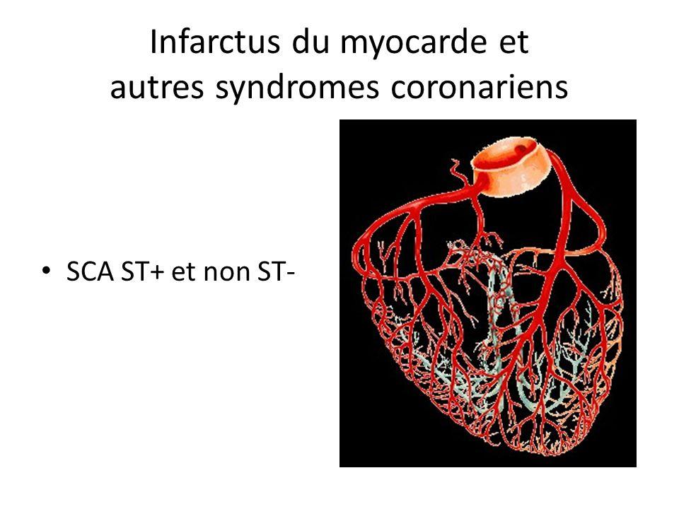 Infarctus du myocarde et autres syndromes coronariens