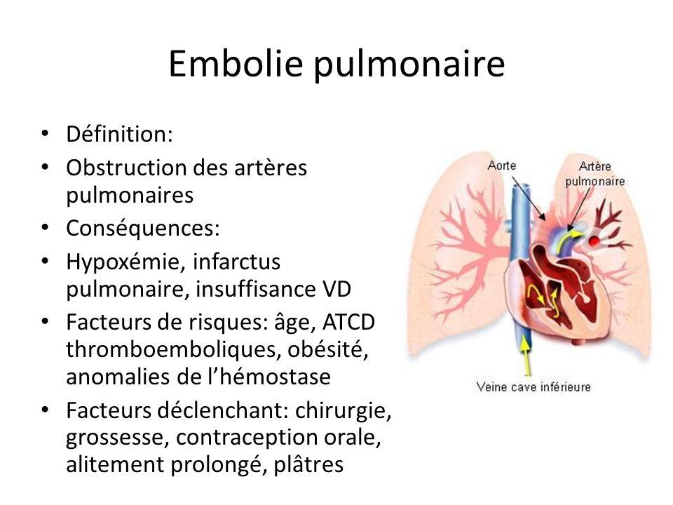 Embolie pulmonaire Définition: Obstruction des artères pulmonaires