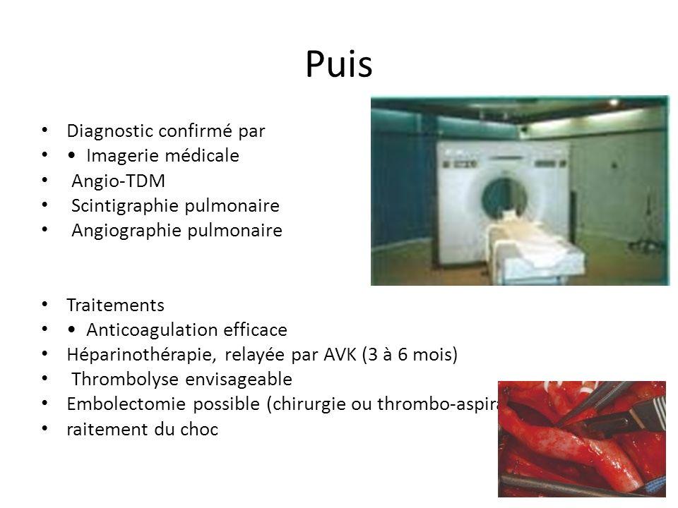 Puis Diagnostic confirmé par • Imagerie médicale Angio-TDM