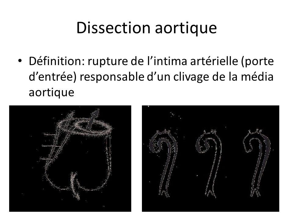 Dissection aortique Définition: rupture de l'intima artérielle (porte d'entrée) responsable d'un clivage de la média aortique.