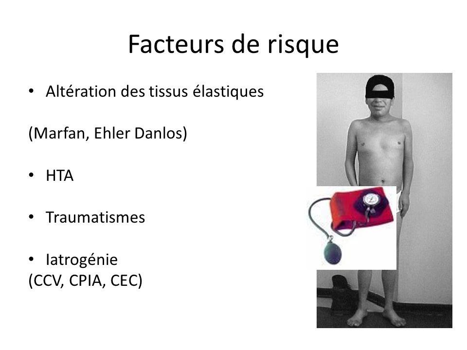 Facteurs de risque Altération des tissus élastiques