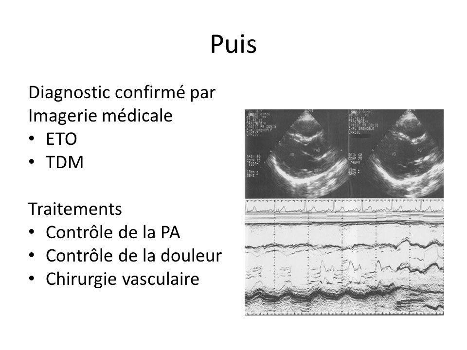 Puis Diagnostic confirmé par Imagerie médicale ETO TDM Traitements