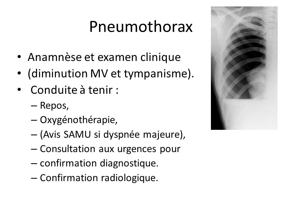 Pneumothorax Anamnèse et examen clinique