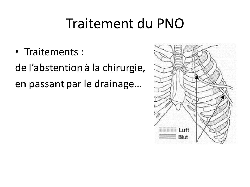Traitement du PNO Traitements : de l'abstention à la chirurgie,