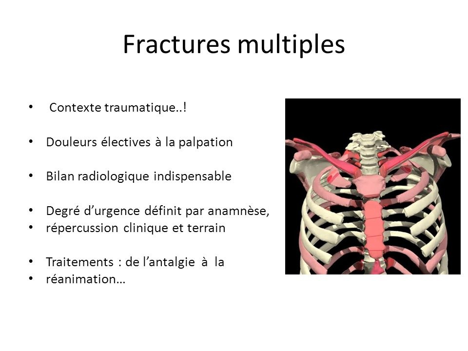 Fractures multiples Contexte traumatique..!