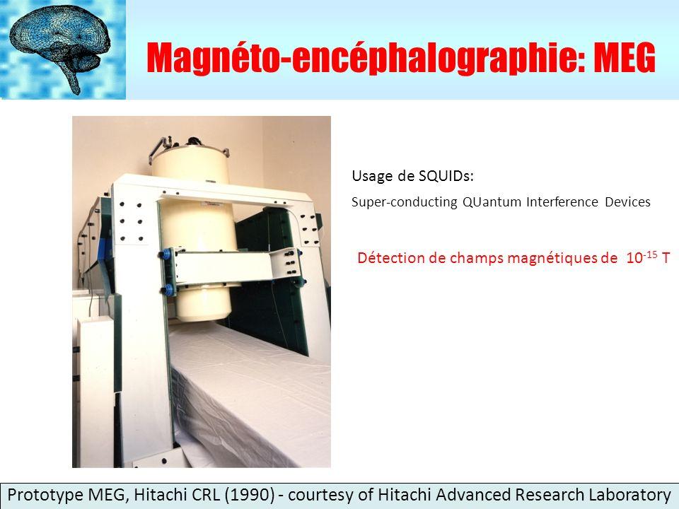 Magnéto-encéphalographie: MEG