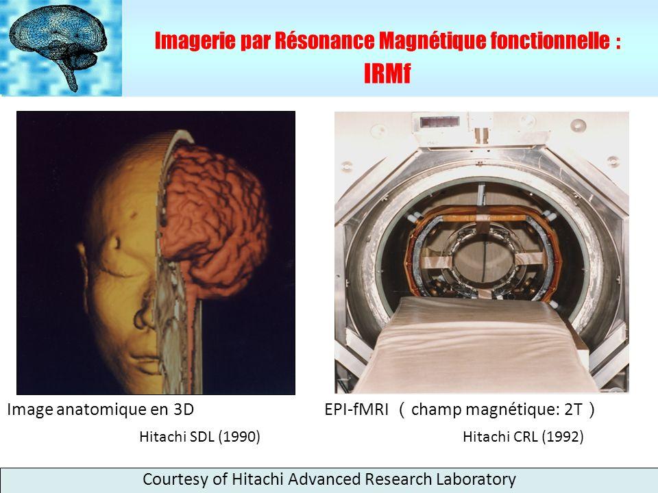 IRMf Imagerie par Résonance Magnétique fonctionnelle :