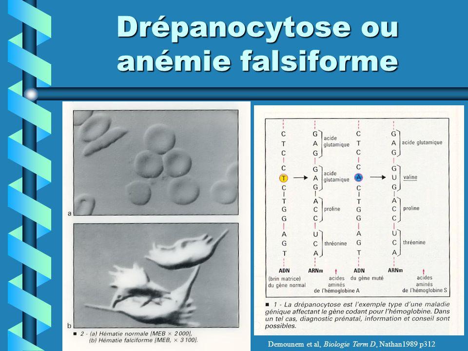Drépanocytose ou anémie falsiforme
