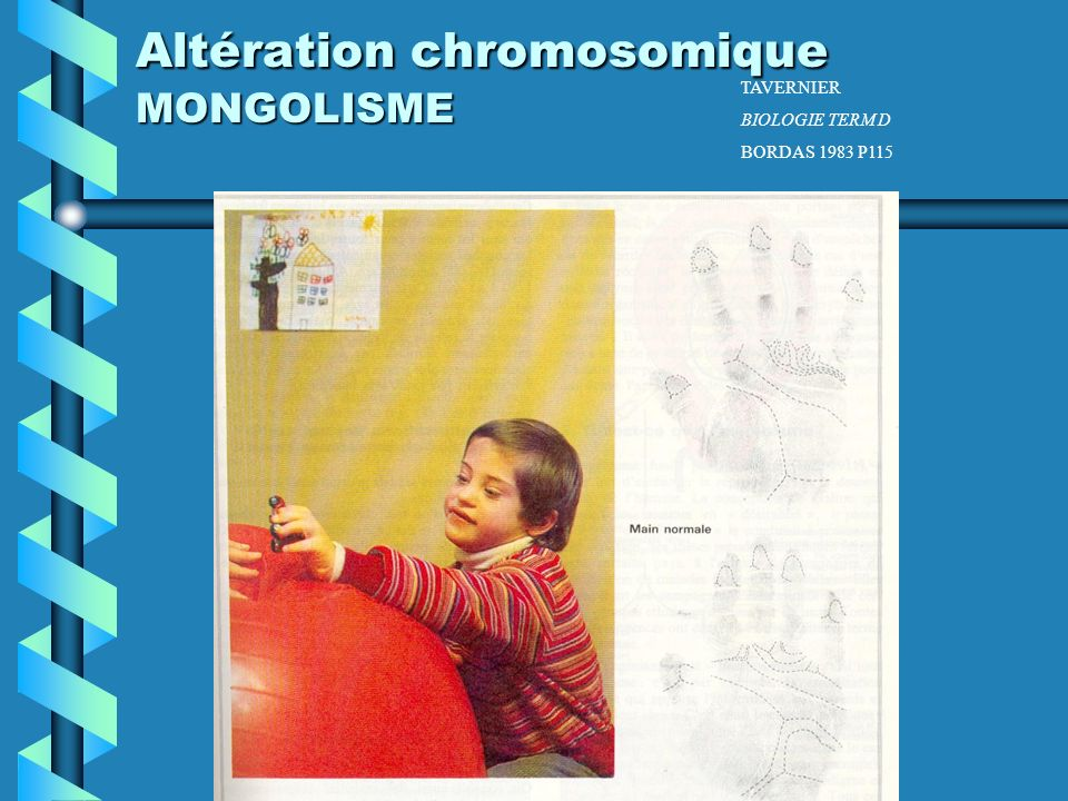 Altération chromosomique MONGOLISME