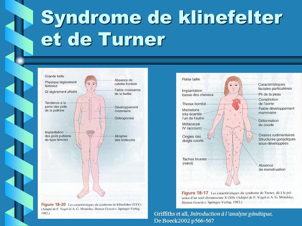 Syndrome de klinefelter et de Turner