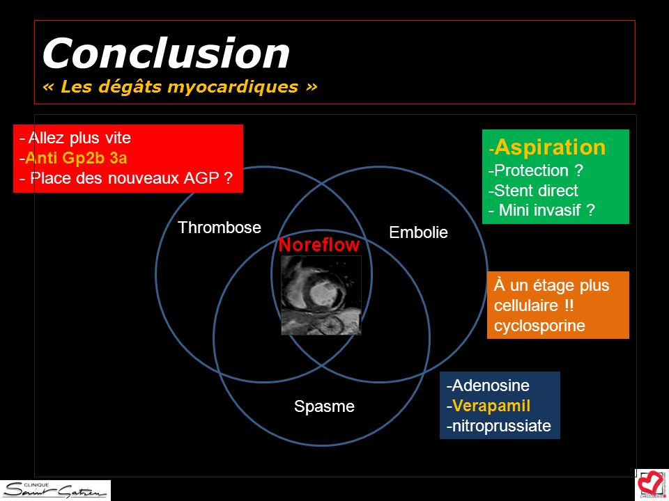 Conclusion « Les dégâts myocardiques »