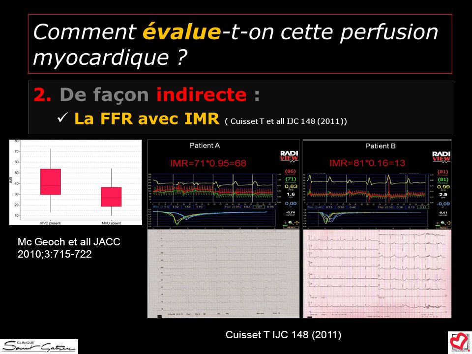 Comment évalue-t-on cette perfusion myocardique