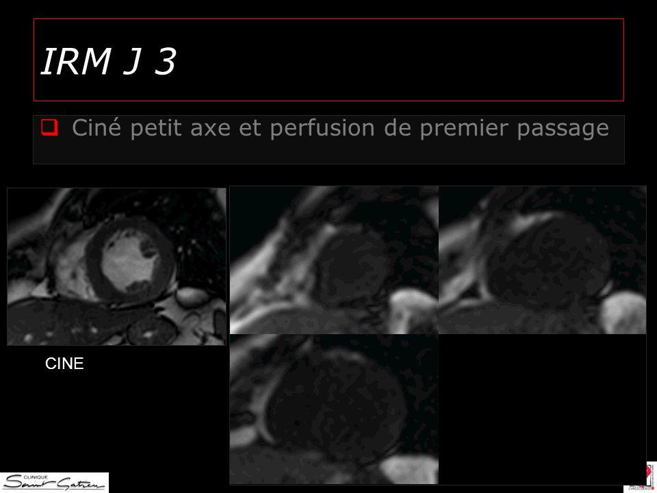 IRM J 3 Ciné petit axe et perfusion de premier passage CINE